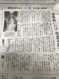 読売側弯症1.jpg